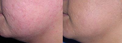 Acne scarring treated with Palomar Star Lux 1540® Fractional Laser Resurfacing