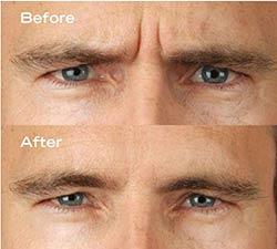 how to avoid wrinkles between eyebrows