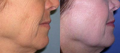Before and after Fraxel Re:pair® Fractional Laser Resurfacing