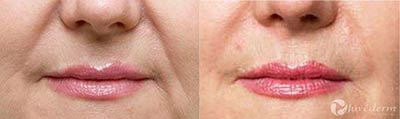 Before and after treatment with Juvederm®