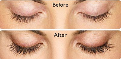 Latisse Lash Enhancer