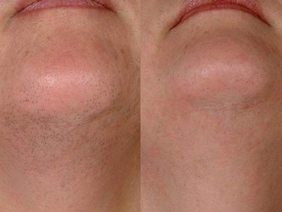 Before and after LightSheer® Laser Permanent Hair Reduction