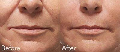 Before and after treatment with Radiesse®
