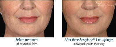 Before and after treatment with Restylane®