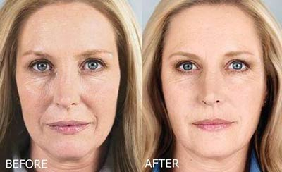 Before and after treatment with Sculptra®