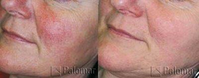 Before and after treatment with the Palomar Lux Pulsed Light System®