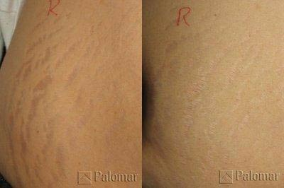 Stretch marks treated with Palomar Star Lux 1540® Fractional Laser Resurfacing