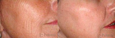 Wrinkles treated with Palomar Star Lux 1540® Fractional Laser Resurfacing