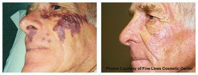 Before and after treatment of birthmark with laser surgery