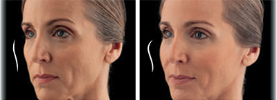 Before and after treatment with Juvederm Voluma® XC