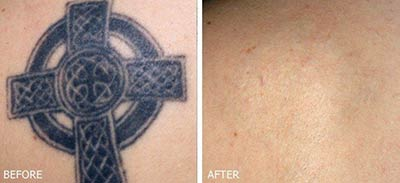 Tattoo removal with MedLite® Laser